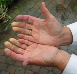 Raynaud-hand2